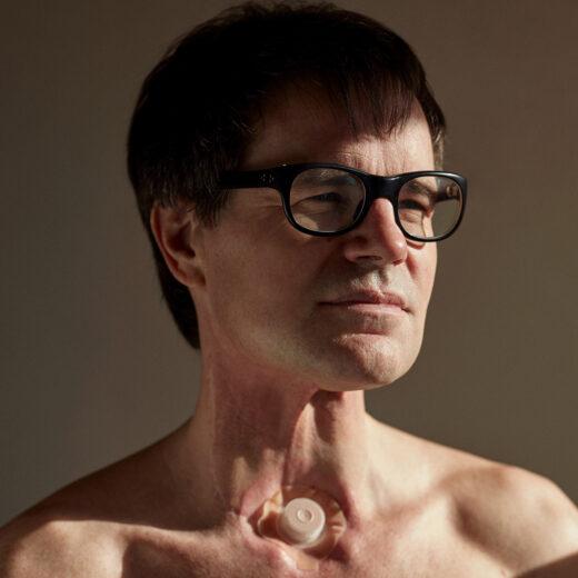Willem Melchior rookte zich de kanker, verloor zijn strottenhoofd en keert zich nu tegen de sigaret